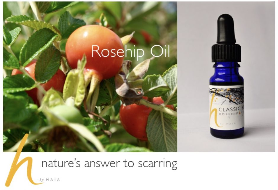 Rosehip Oil | Reduce Scarring | Natural Oils - h by Maia